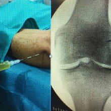 Alternativas a la prótesis en la artrosis severa de rodilla, en las Jornadas de la Fundación Garcia Cugat