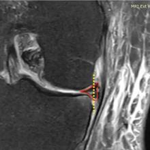 ¿Debemos seguir haciendo artroscopias para curar rupturas del menisco?